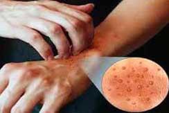 Enfermedades de la piel int