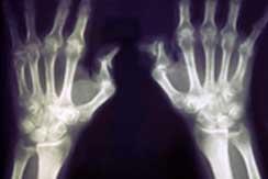 4 Personas con artritis int1