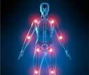 4 Personas con artritis