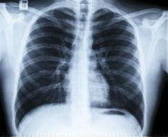 radiografia-torax