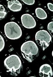 epilepsia-1-i