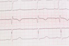 epilepsia-3-i