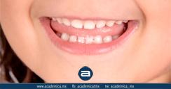 i-fluorosis-dental