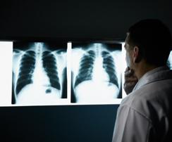 i-enfermedades-respiratorias-y-cancer-pulmon