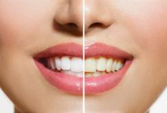 dientes-I