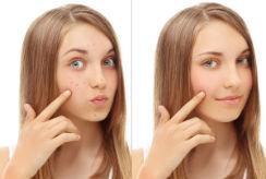 acne-I
