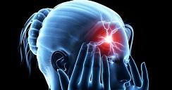 Ataque cerebral en mujeres y su detección.2