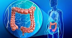 malrotacion intestinal.2