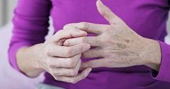 4 síntomas para detectar artritis en tus manos.2