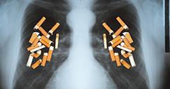 Pacientes con cáncer de pulmón que fuman menos viven más.2