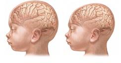 Ilustración izquierda: cabeza normal. Ilustración derecha: microcefalia / Fuente: National Library of Medicine