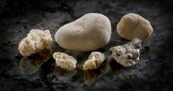 kidney_stones.2