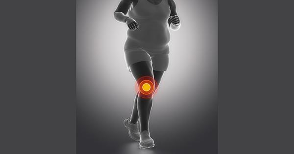 obesidad-rodillas