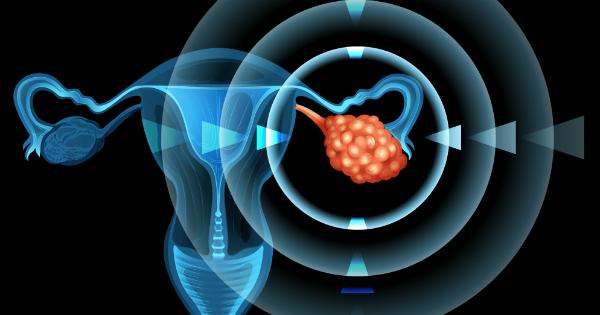 cáncer ovárico