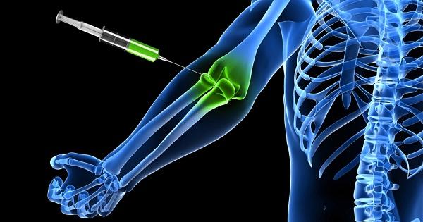 proloterapia-articulaciones