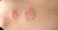 Dermatólogo Psoriasis