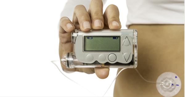 bomba-de-insulina