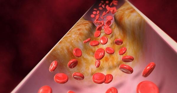 placa-arterias