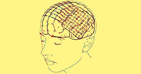 estimulacion-electrica-continua-epilepsia