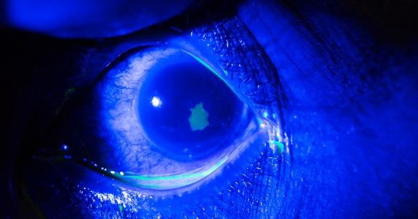 abrasion-cornea