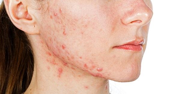 acne-retrasar-envejecimiento