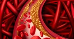 Polvo reducir colesterol
