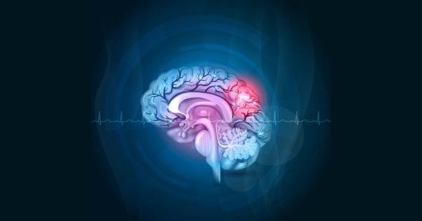 terapias-enfermedades-cerebrovasculares