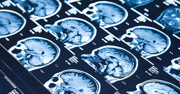 desinformacion-epilepsia