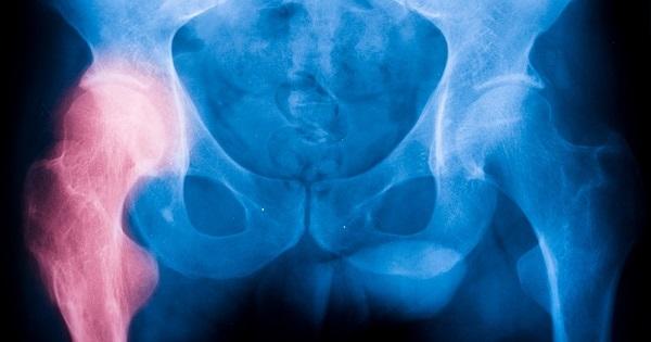 fractura-de-cadera-consejos-reducir-riesgo-2