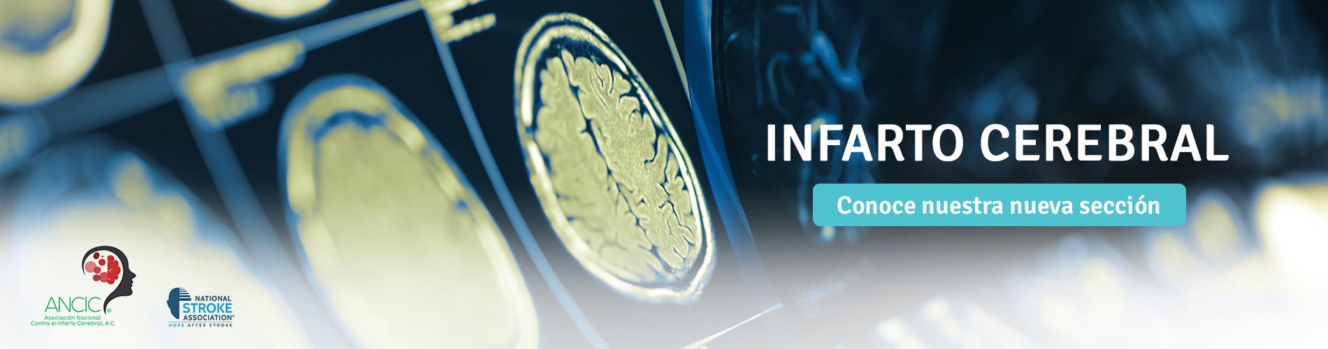 ¿Qué es un infarto cerebral y cómo prevenirlo?